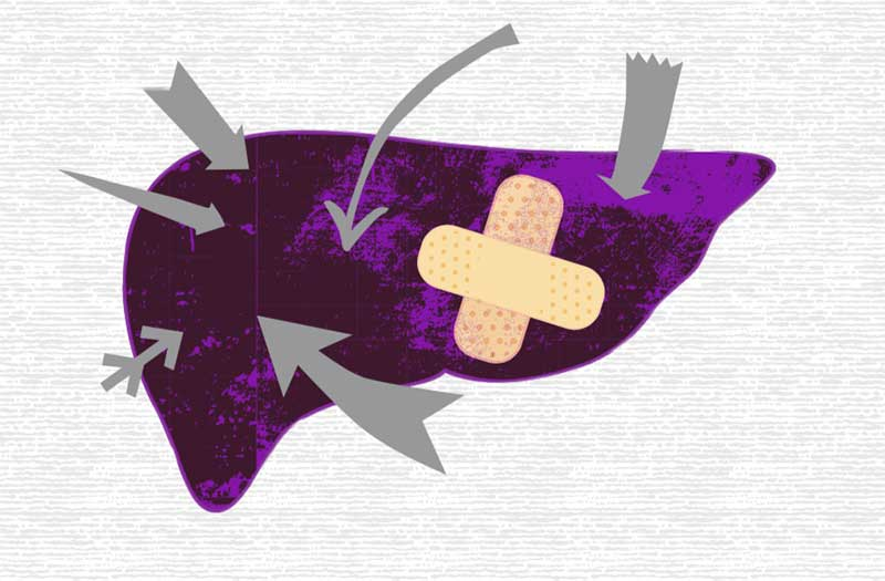 Image Buch Leberreinigung Schmerz